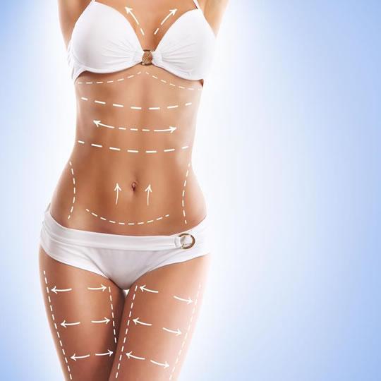 cirurgia plástica pos bariatrica curitiba