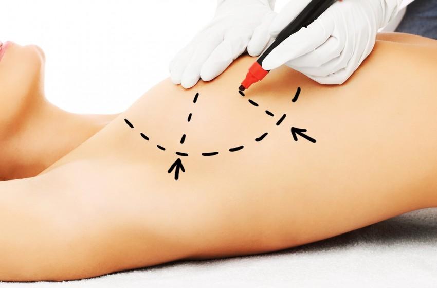 cirurgia de reconstrucao de mama apos mastectomia
