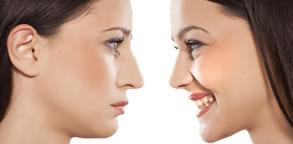 cirurgia plastica do nariz curitiba
