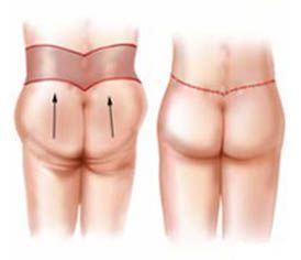 torsoplastia redutora pos bariatrica