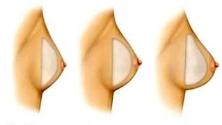 cirurgia colocar silicone nos peitos curitiba