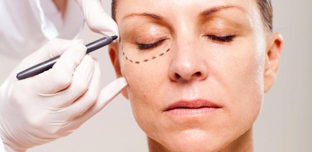 cirurgia plastica de palpebras