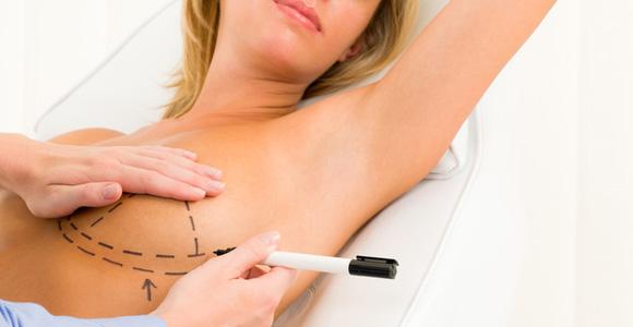 levantamento de mamas em curitiba cirurgia plastica