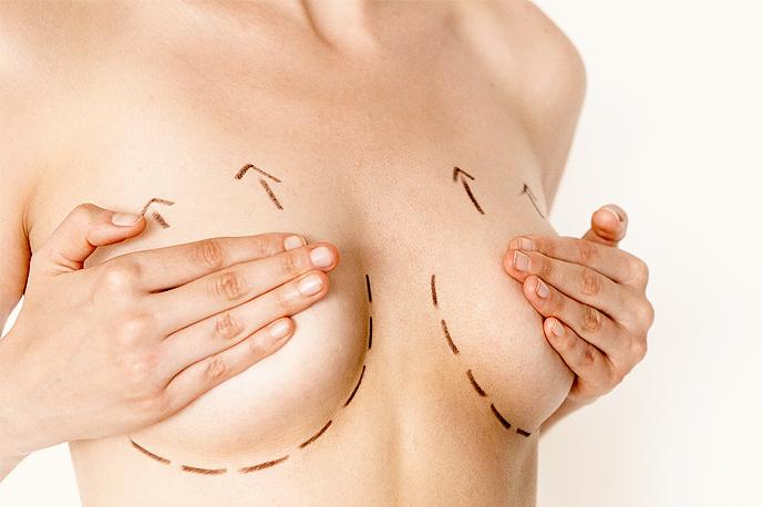 mastopexia cirurgia plastica para levantar os seios