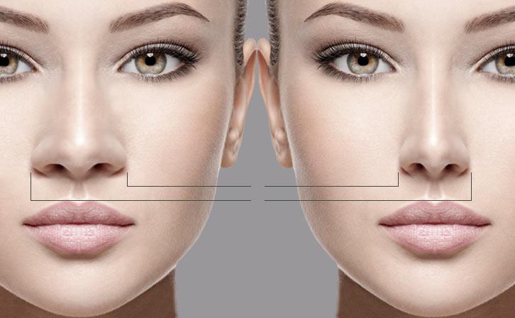Rinoplastia - Cirurgia para Redução do Nariz