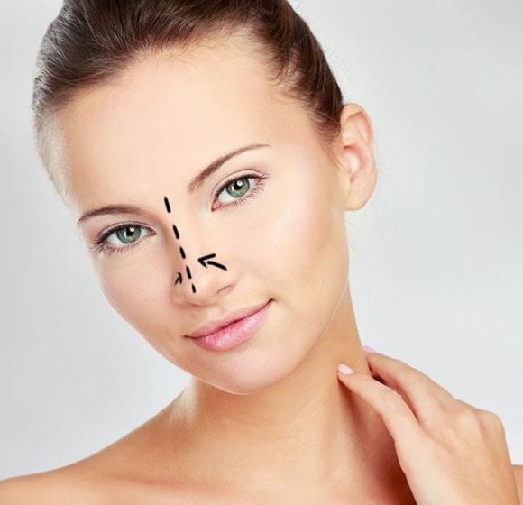 rinoplastia redutora cirurcias para nariz